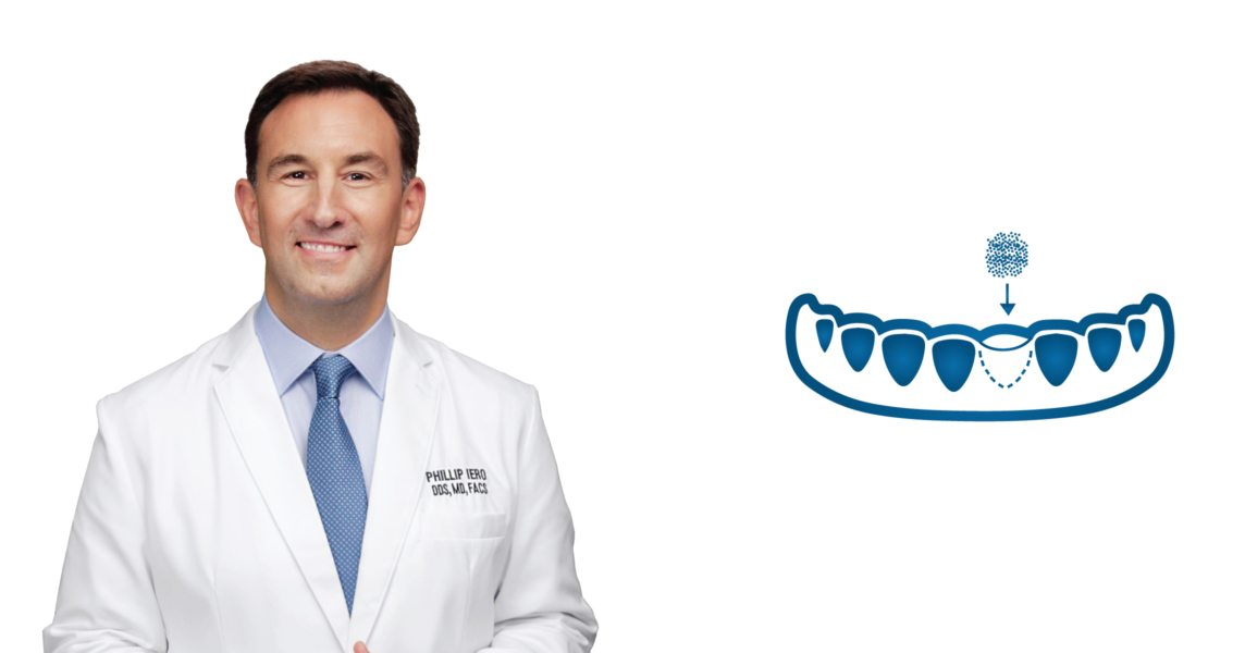 What is bone grafting in Bellaire, TX?